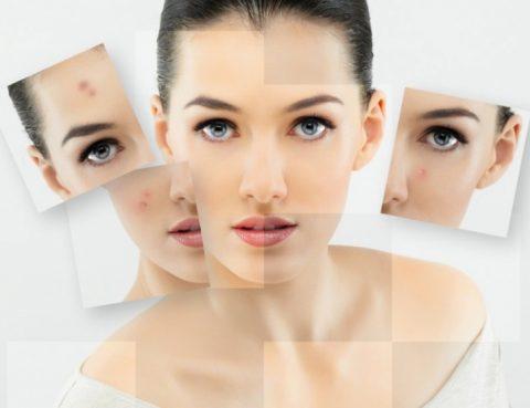 lice-zdravlje-1365675081-1011