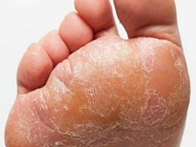 gljivice-na-stopalima