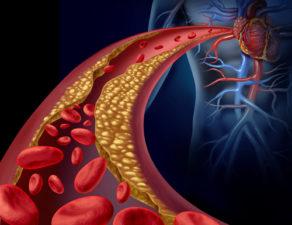 holesterol-u-krvi